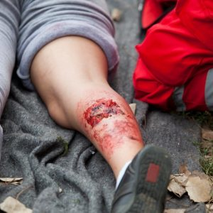 First Aid for injured person