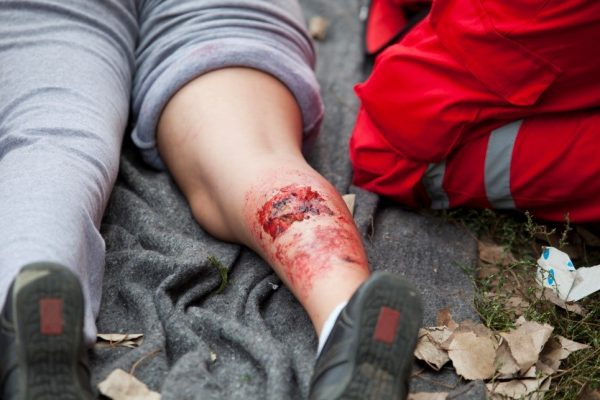 Emergency First Aid for injured person